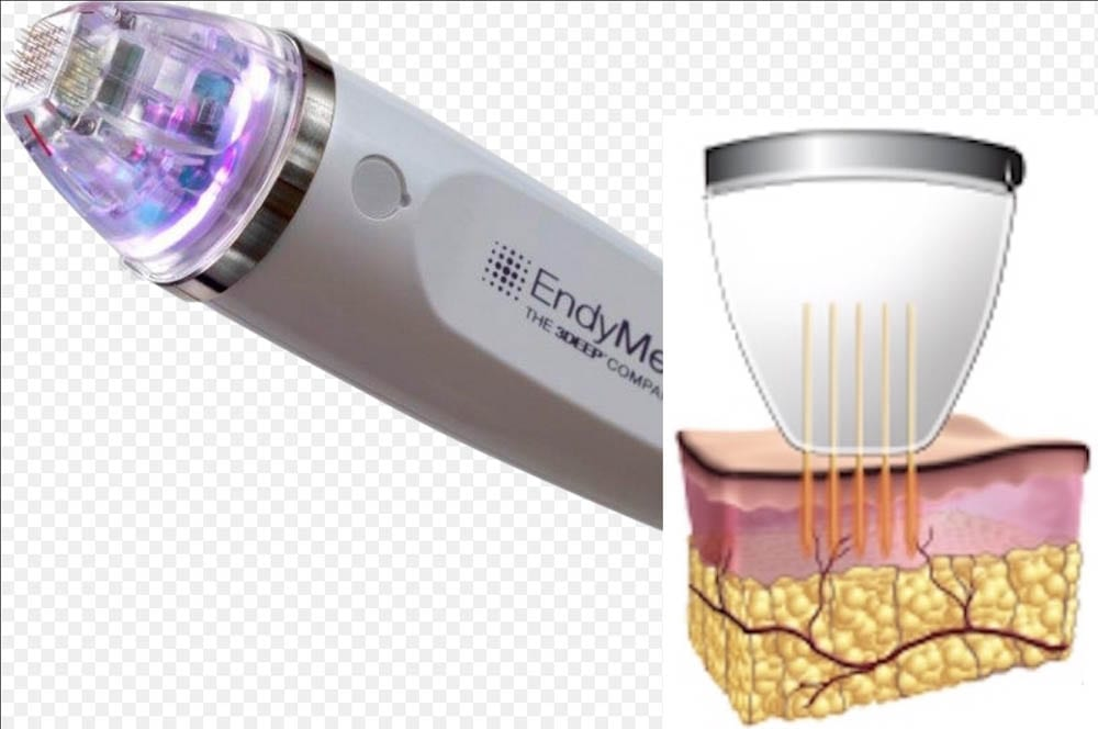 How Intensif Microneedle works
