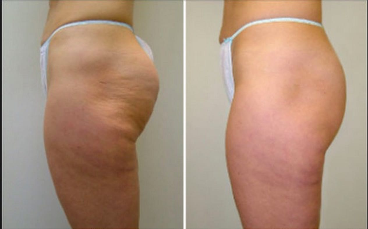 Before and After 3 treatments with Velashape 3