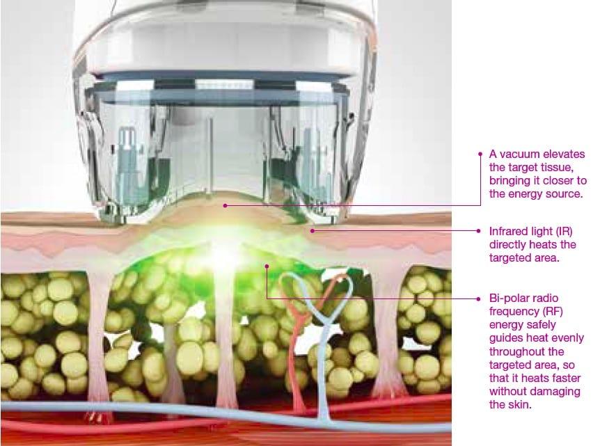 How Velashape Technology Works