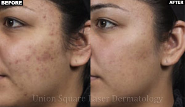 Facial Acne after six treatments with Isolaz
