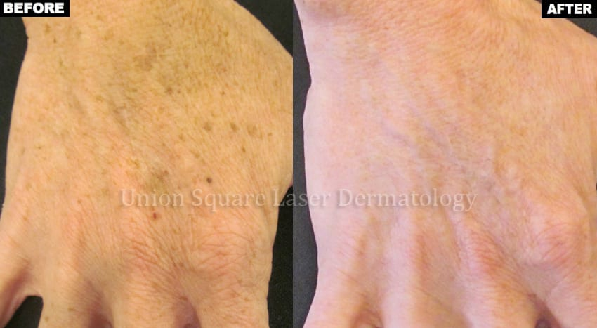 Brown spots on hands before and after one treatment with Alex TriVantage laser