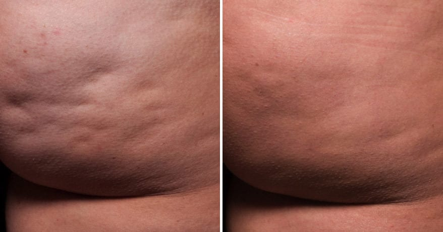 36 year old female patient treated for cellulite on buttocks; 164lbs before and 163lbs one year after a single treatment.