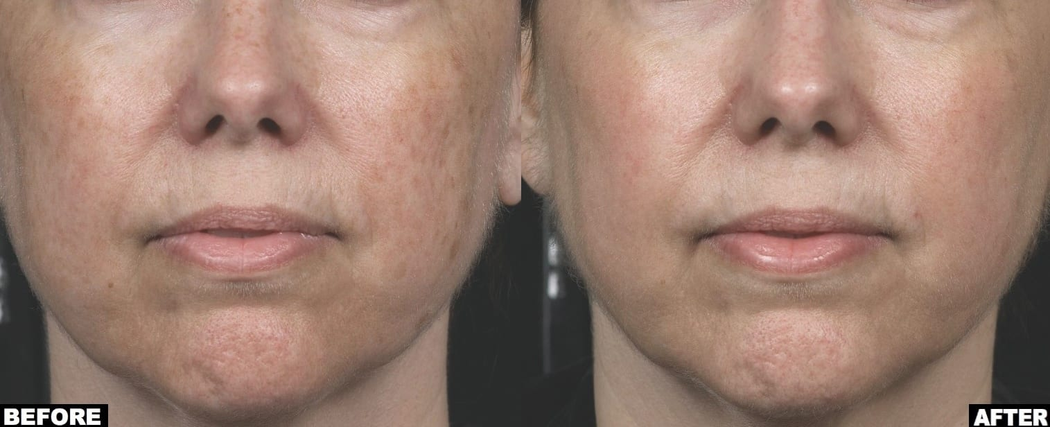 Face treatment with Clear and Brilliant laser