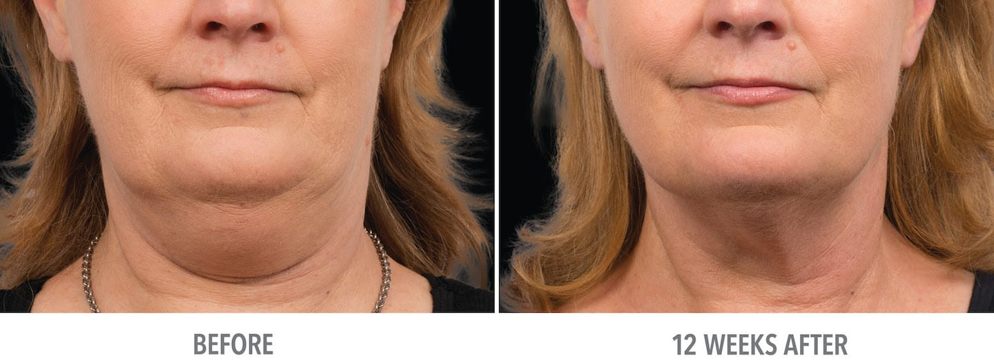 Coolsculpting in submental area, female patient, before treatment and 12 weeks after two treatments