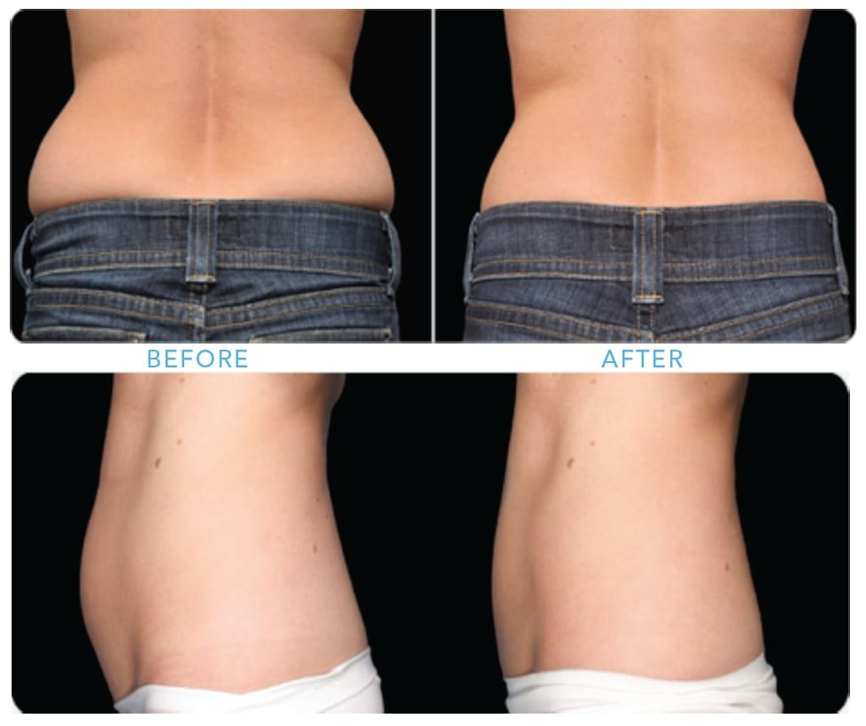 Coolsculpting in flanks and abdominal area, female patient, before treatment and after 8 weeks