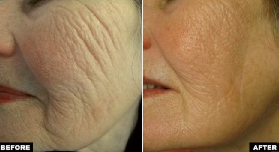 Profound treatment cheeks before and after
