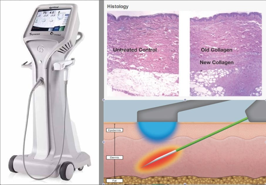 Profound device and histology