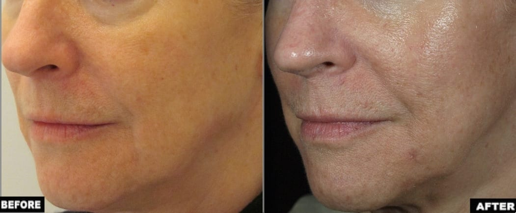 Profound treatment jowls before and after