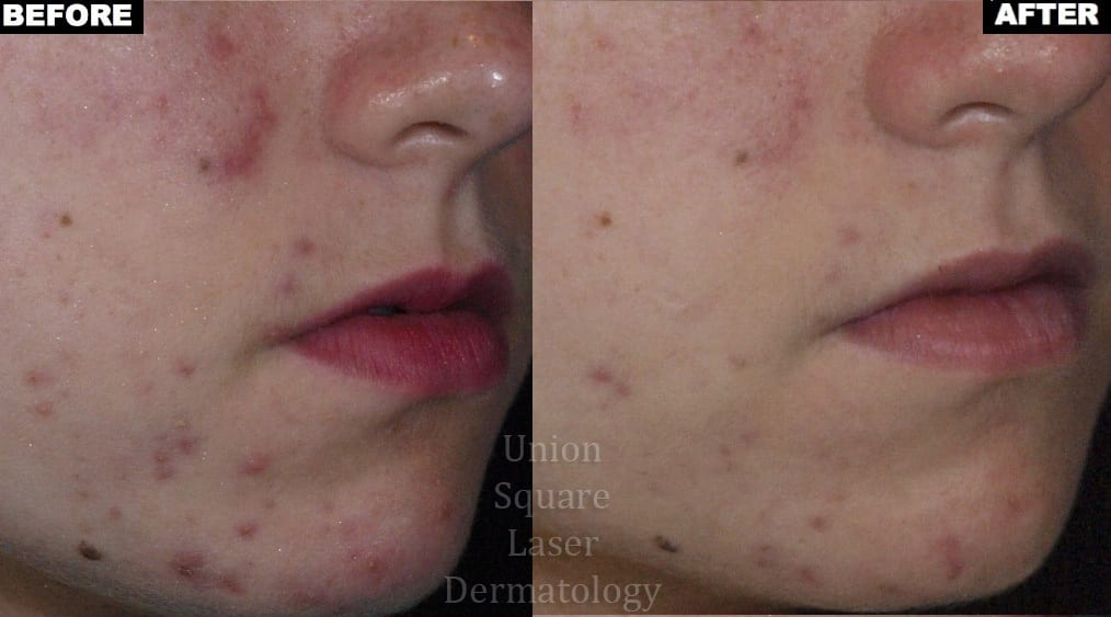 Facial Acne after one treatment with Photodynamic Therapy