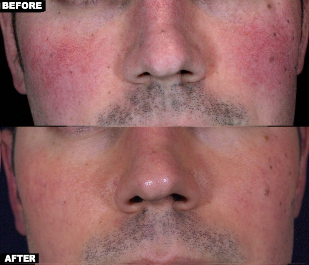 Facial redness treatment with Excel V and V-Beam Lasers by Dr. Chapas (one session)