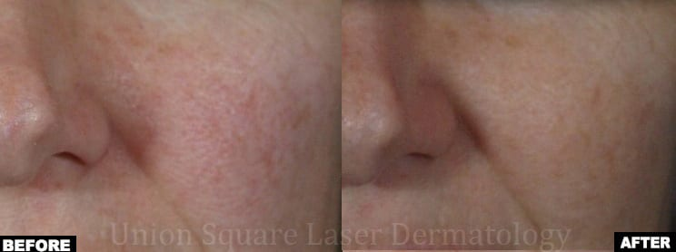 Facial redness treatment with Excel-V and V-Beam Lasers (one session)