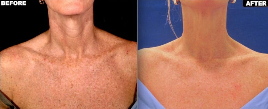 Brown spots on chest before and after one treatment with Fraxel Restore Dual laser