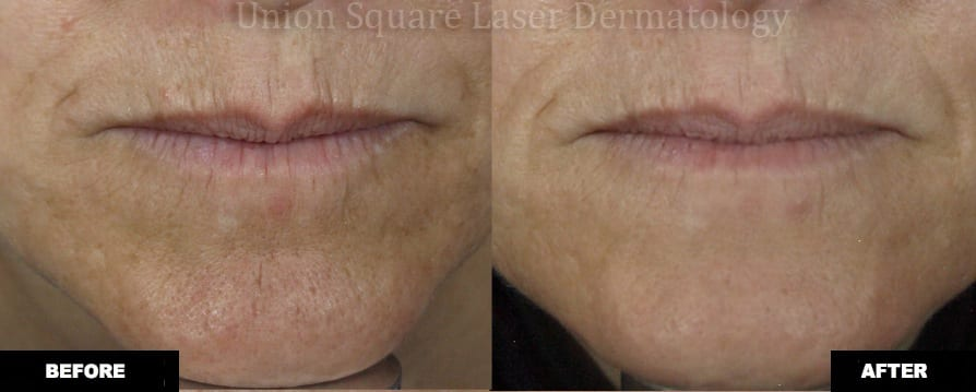Treatment of fine lines around lips with Fraxel Restore Dual (one treatment)