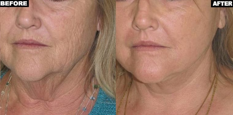 Sun damage treatment with Fraxel Repair