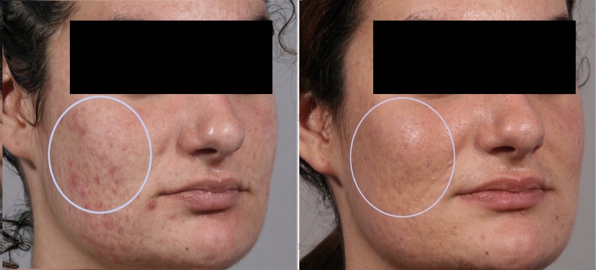 25 year old patient before treatment and 2 weeks after 3 Intensif RF Microneedle treatments for acne scars.