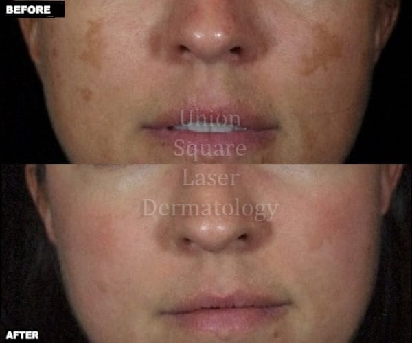 Melasma on cheeks before and after one treatment with Fraxel Restore Dual laser