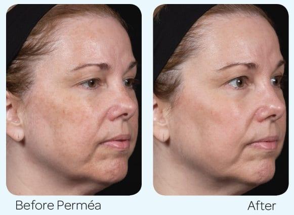 Clear and Brilliant Permea and Skinceuticals CE Ferrulic treatment