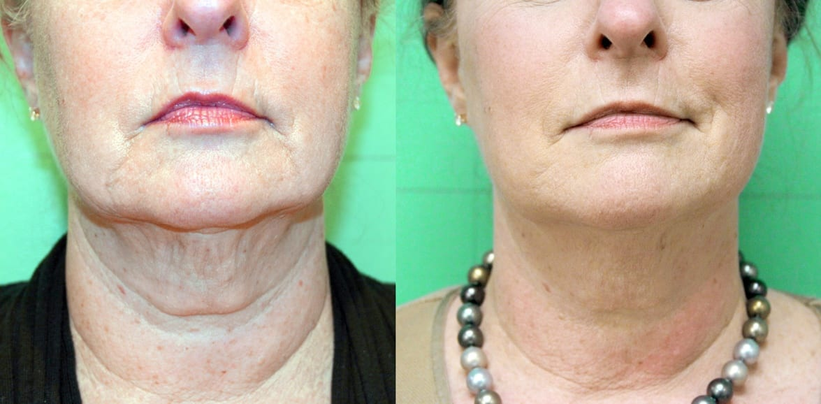 Before treatment and 2 months After series of treatments for facial skin tightening