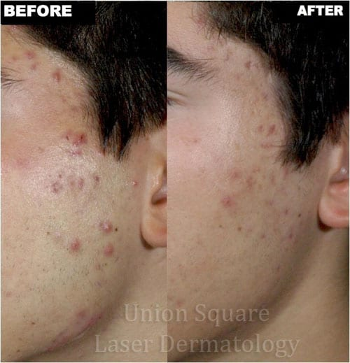 Facial Acne before and after two treatments with Smoothbeam