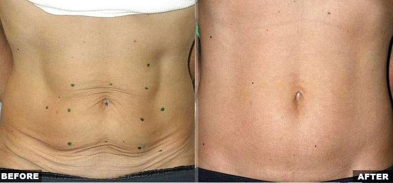 Thermage abdominal skin laxity treatment before and after photos