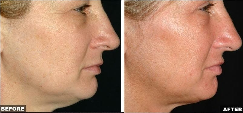 Thermage facial skin laxity treatment before and after photos