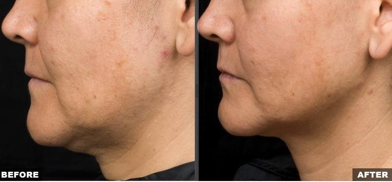 Thermage jowl skin laxity treatment before and after photos