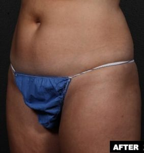 Before and After photos for abdominal treatment with truSculpt: