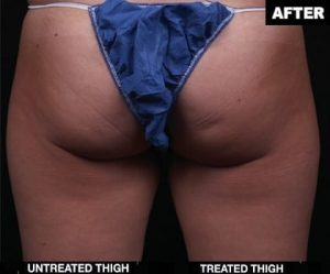 Before and After contours for right thigh truSculpt treatment