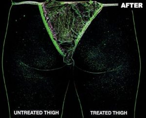 trusculpt-one-thigh-after-silhouette