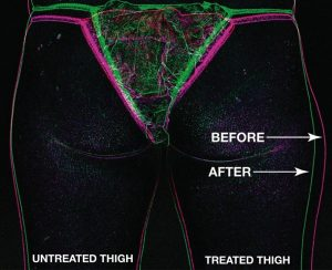 trusculpt-one-thigh-overlay