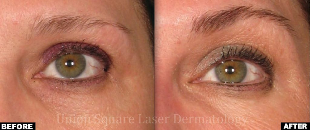 Ultherapy brow lift before and after photos