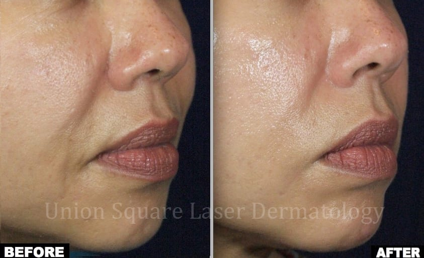 Ultherapy - Union Square Laser Dermatology