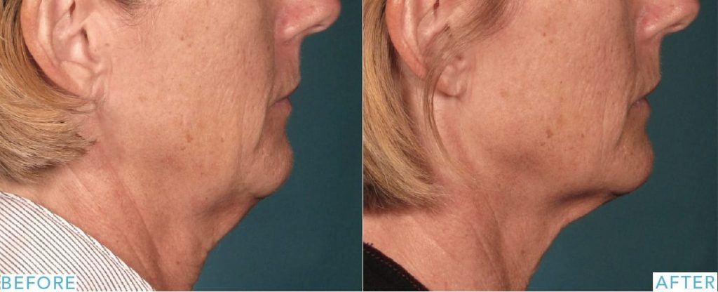 Ultherapy neck skin laxity treatment before and after photos