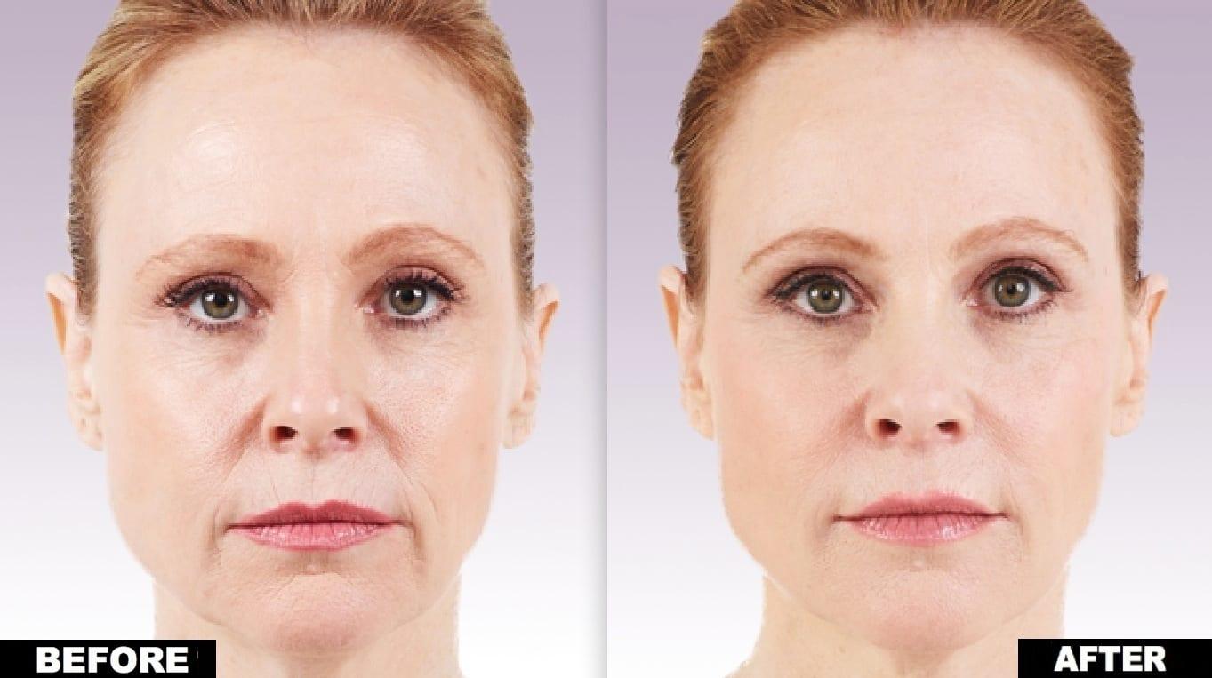 Dermal Fillers - Union Square Laser Dermatology