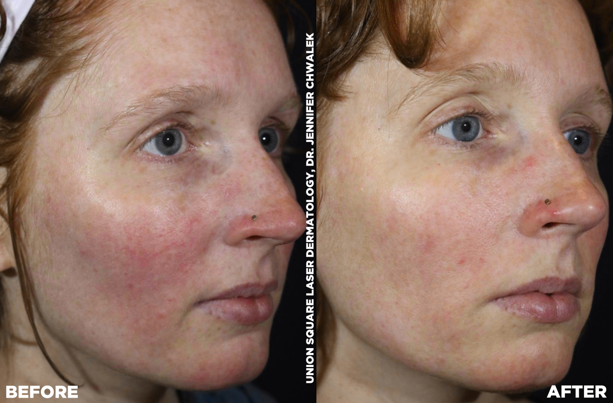 Vbeam Prima Union Square Laser Dermatology